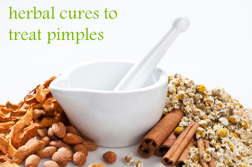 Herbal Cures for Pimples