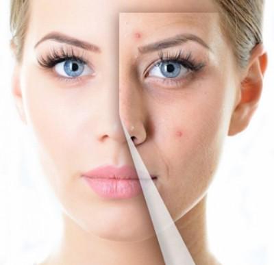Benefits of Orange Peels for Acne