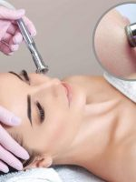 Microdermabrasion - The Ultimate Skin Solution